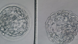 We've transferred two good-quality embryos each time. There is no guarantee both, or even one, will implant and grow, let alone reach full term. IVF is not a route to have twins on purpose.